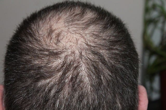 hair 248049 640