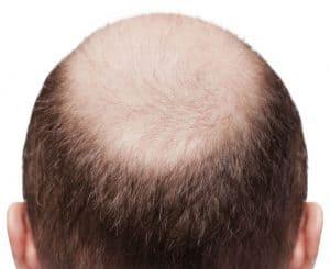 лысый мужчина