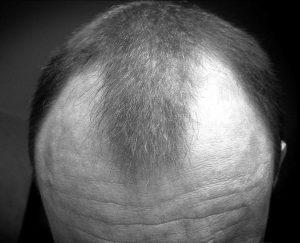 мужчина с волосами