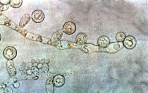 грибы альбиканов Candida